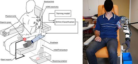 esperimento protesi controllata da arto fantasma